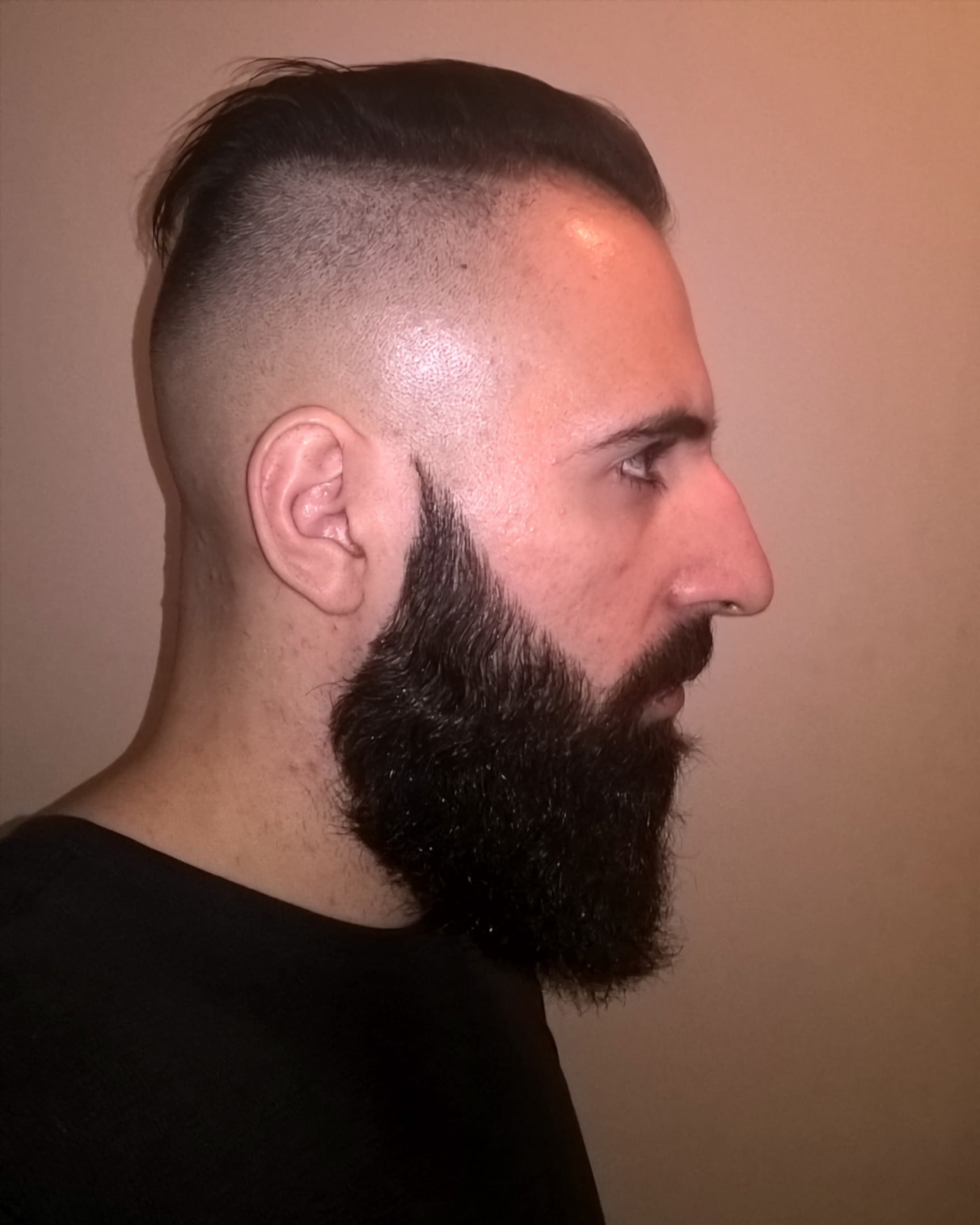 Undercut and Balded Fade with Longer Hair on Top