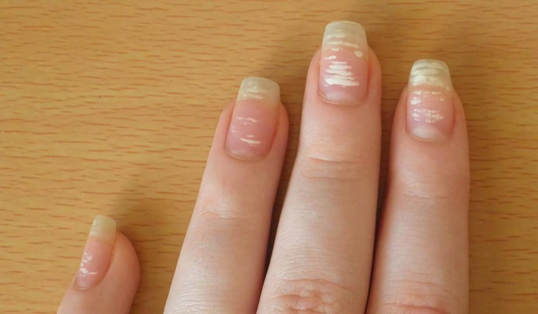 ногти с белыми точками